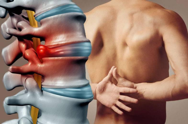 Чем вызвана длительная боль вспине, что делать смежпозвоночной грыжей? врачи ответили навопросы