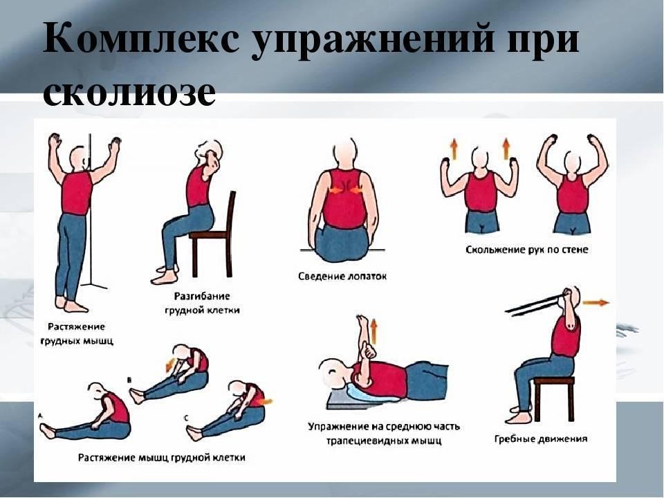 Шейный остеохондроз: симптомы, признаки и лечение остеохондроза шейного отдела