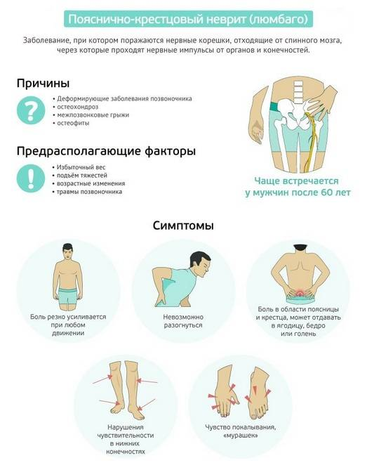 Причины болей в пояснице при стоянии и ходьбе