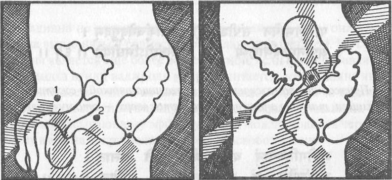 Мула бандха - энергетический замок - техника выполнения для женщин и мужчин