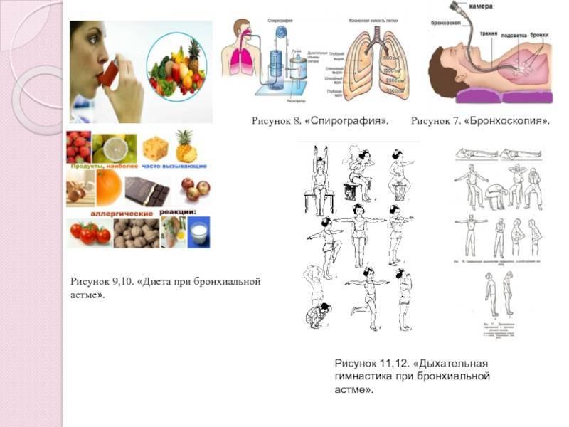 Лфк при бронхиальной астме: виды и программы упражнений