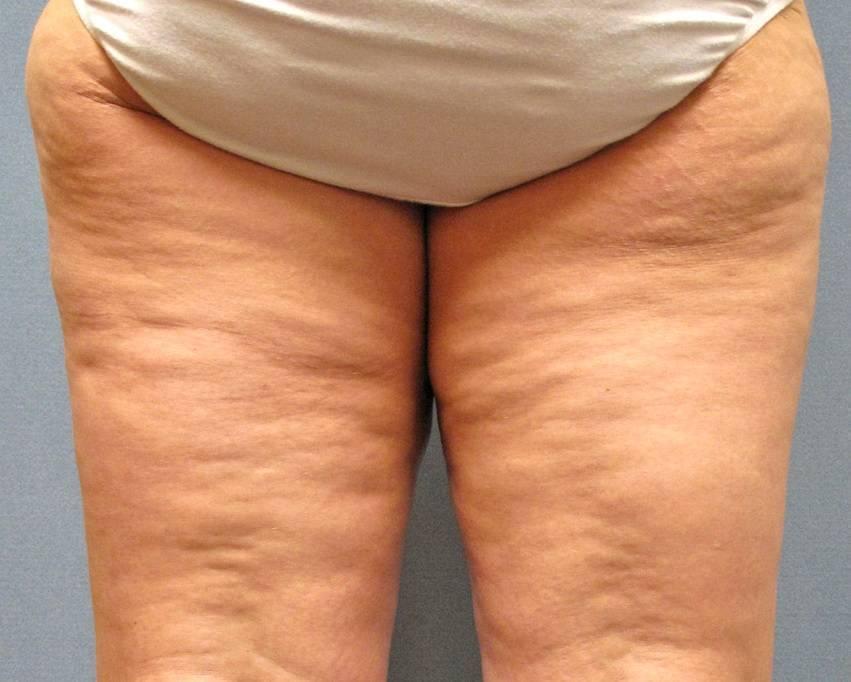 Лечение целлюлита: мезотерапия, липолитики в клинике косметологии «градиент» в москве