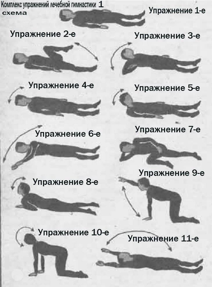 Лфк и гимнастика при шейном остеохондрозе: подборка лучших упражнений для лечения и профилактики