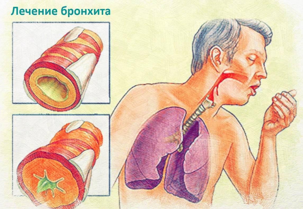 Болезни верхних дыхательных путей - виды, причины, лечение