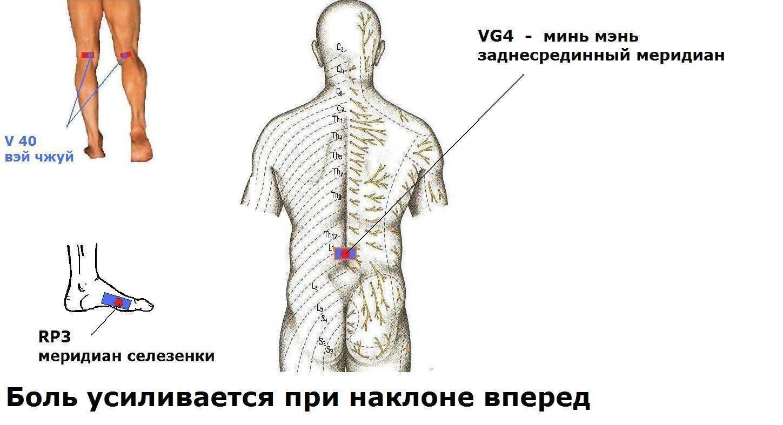 Почему болит спина - причины боли, виды, диагностика и лечение