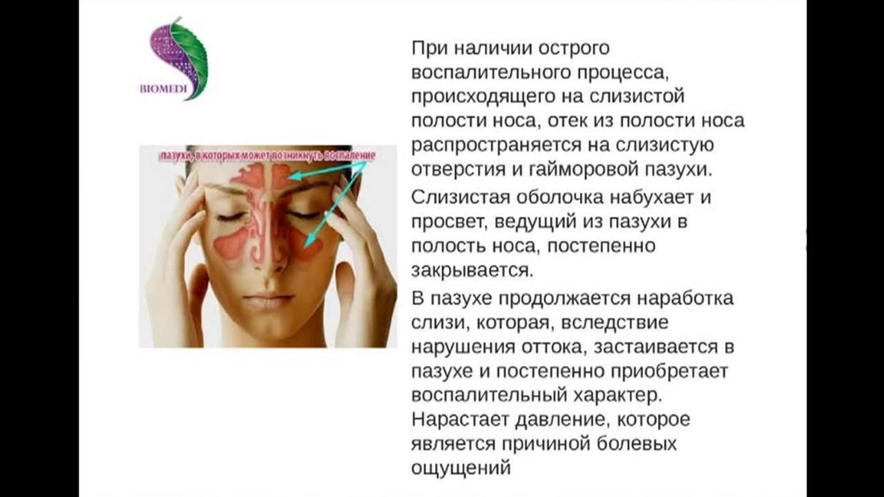 Одонтогенный гайморит - как распознать и успешно вылечить заболевание?