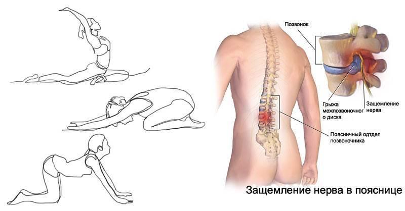 Боль в пояснице при движении, ходьбе: причины, как лечить