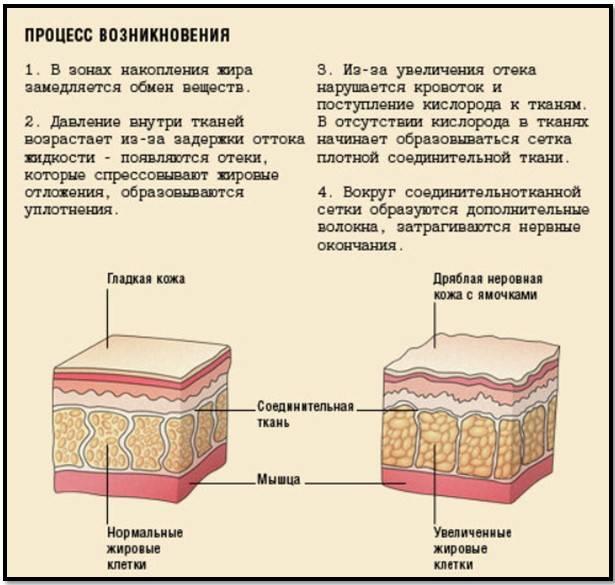 Антицеллюлитный массаж: вся правда о процедуре — медград