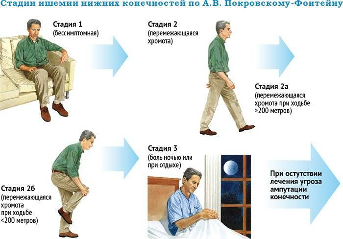 ✓ каротидная эндартерэктомия - цены на операцию в москве